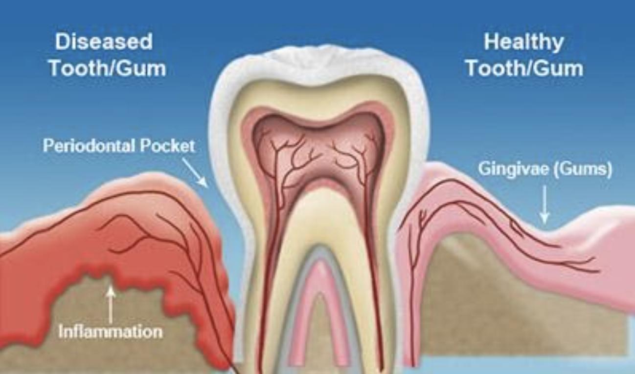 diagram of healthy and diseased gums