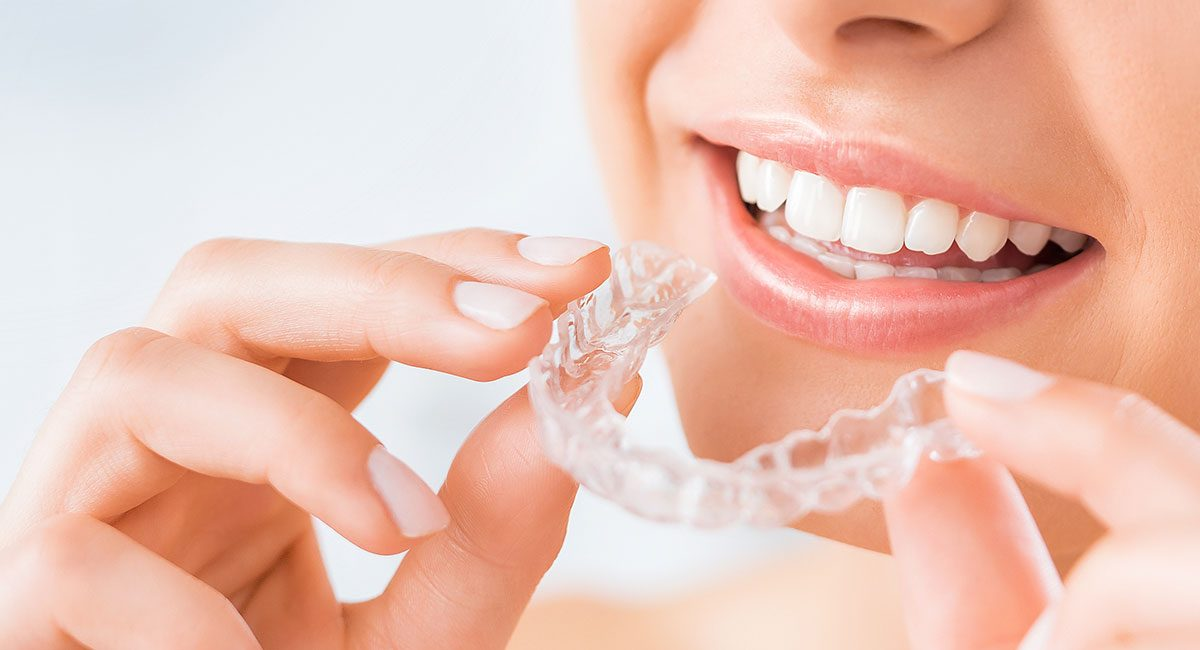 straighten-teeth-clear-aligners1
